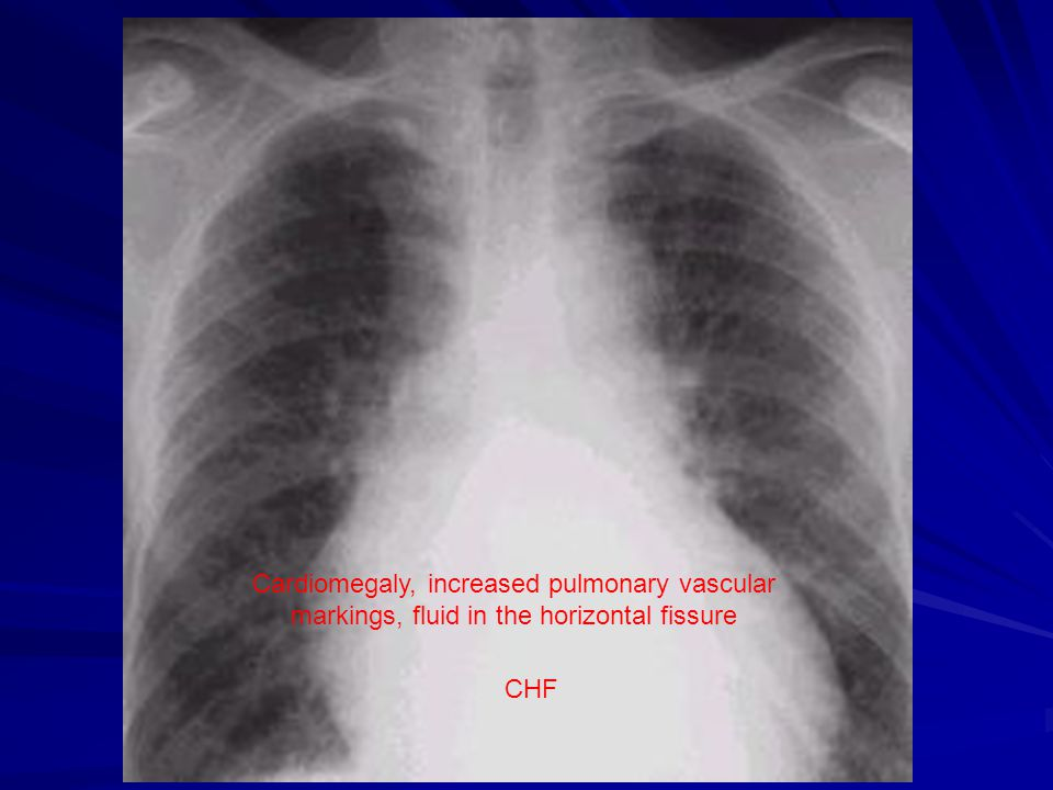 Cardiomegaly, increased pulmonary vascular markings, fluid in the horizontal fissure CHF