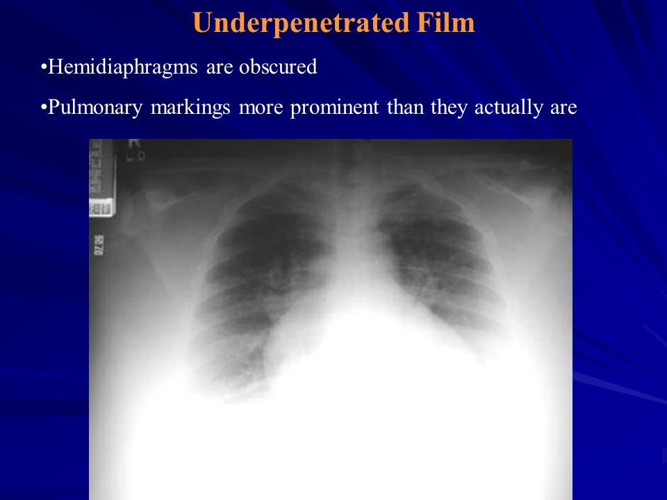 Underpenetrated Film Hemidiaphragms are obscured Pulmonary markings more prominent than they actually are