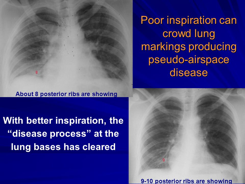 RLL infiltrate / consolidation RLL pneumonia