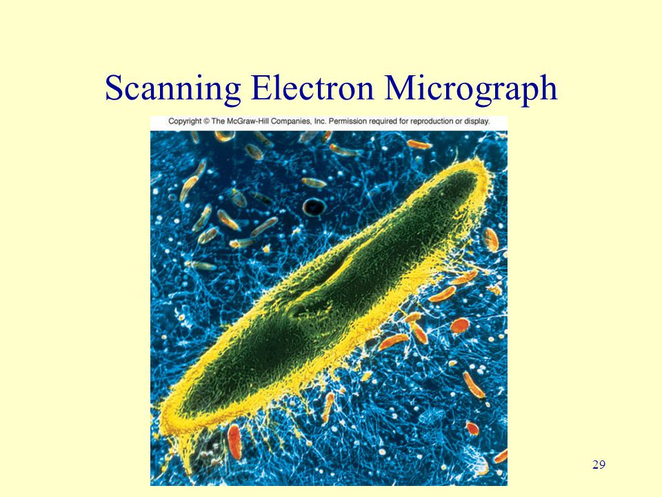 29 Scanning Electron Micrograph