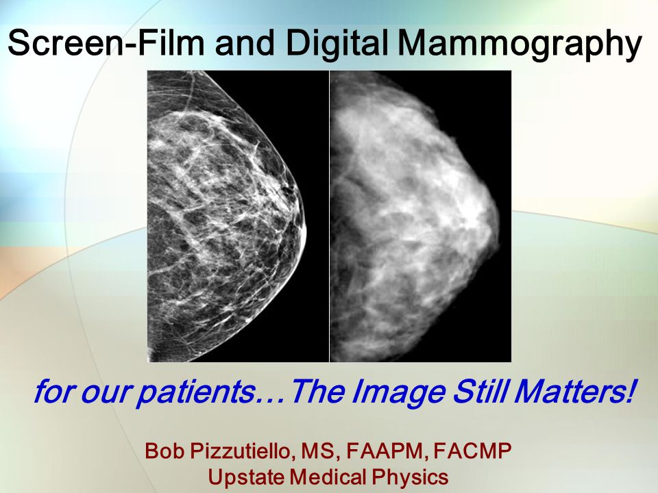 Screen-Film and Digital Mammography Bob Pizzutiello, MS, FAAPM, FACMP Upstate Medical Physics for our patients…The Image Still Matters!