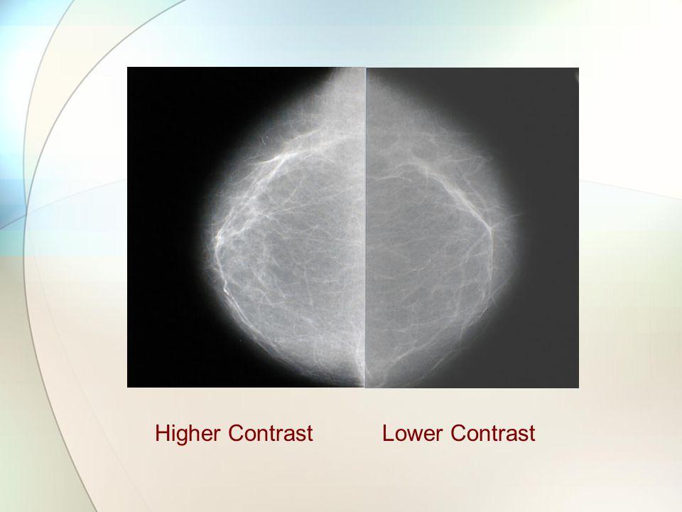 Higher ContrastLower Contrast