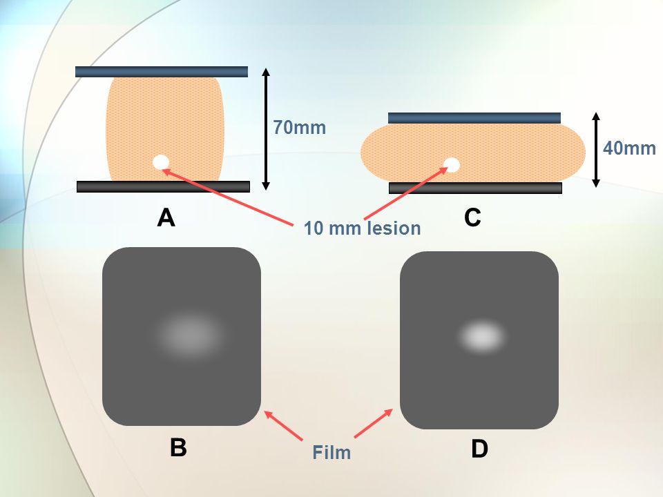 70mm 40mm 10 mm lesion AC B D Film