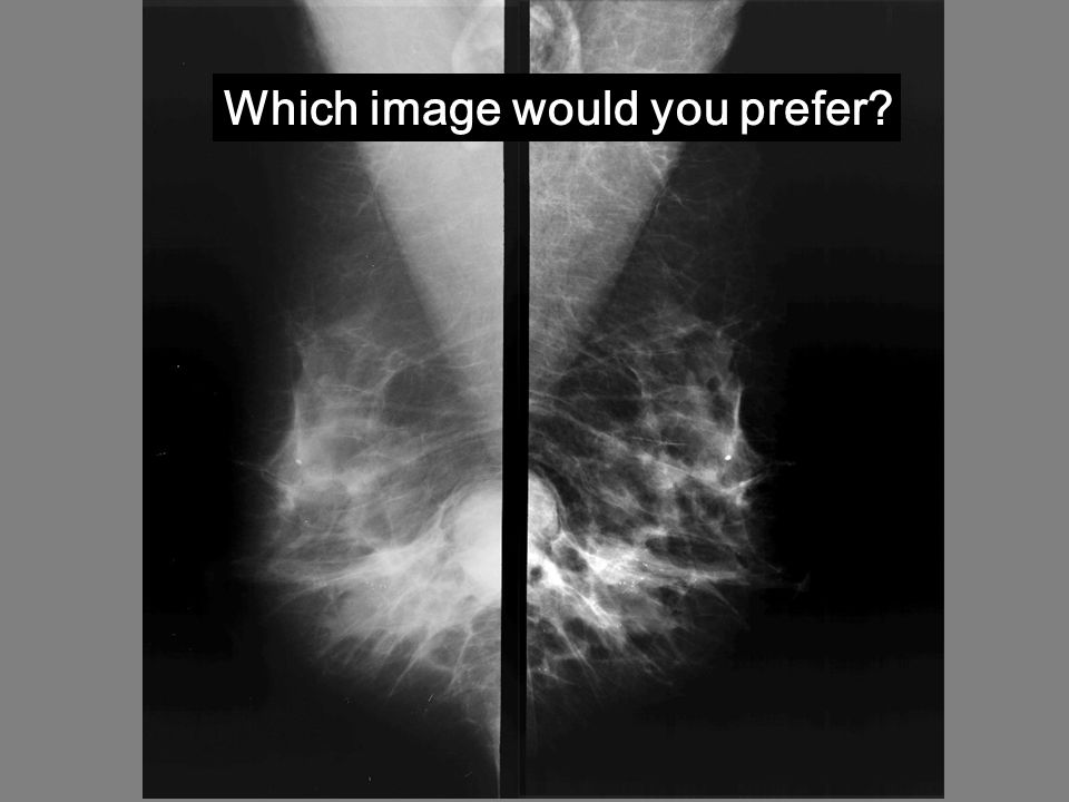 Which image would you prefer