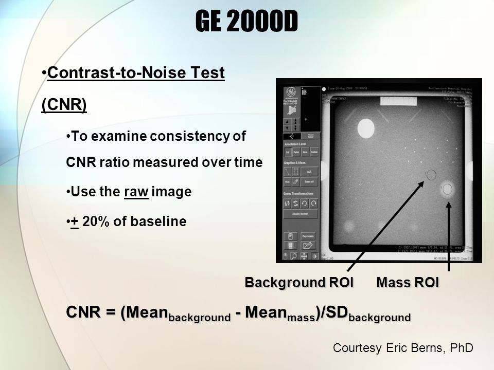 Contrast-to-Noise Test (CNR) To examine consistency of CNR ratio measured over time Use the raw image + 20% of baseline Background ROI Mass ROI CNR = (Mean background - Mean mass )/SD background GE 2000D Courtesy Eric Berns, PhD