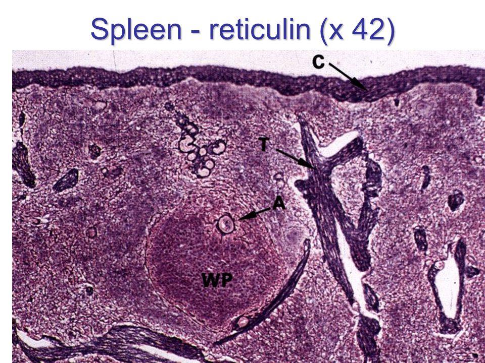 Spleen - reticulin (x 42)