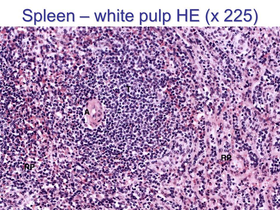 Spleen – white pulp HE (x 225)