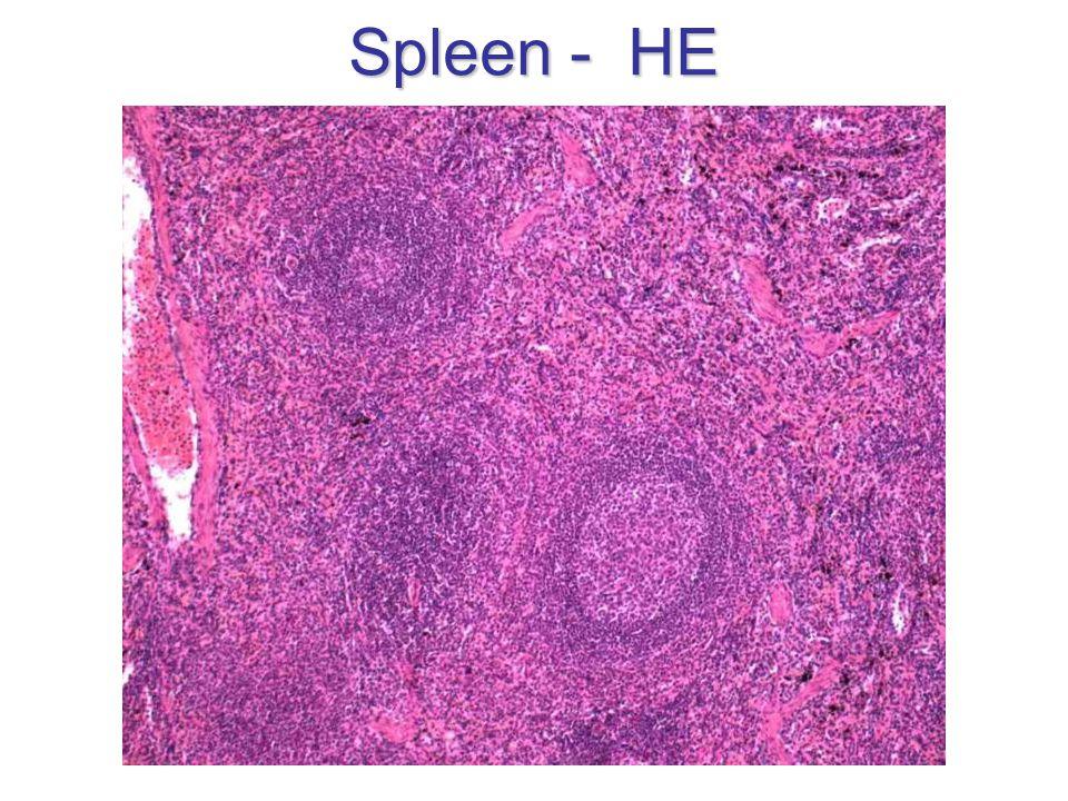 Spleen - HE