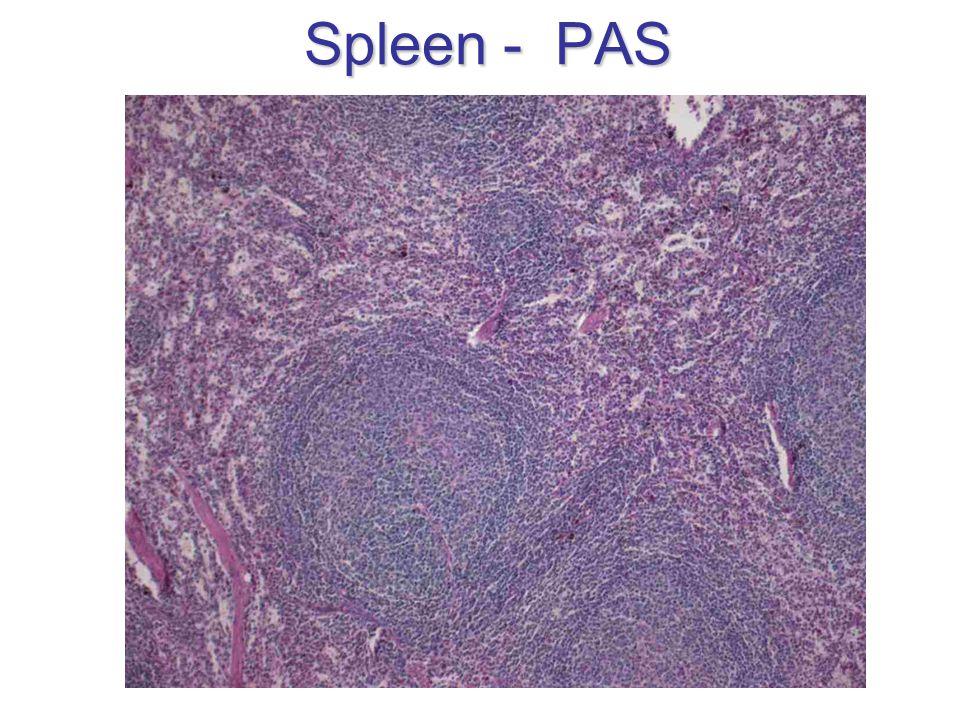 Spleen - PAS