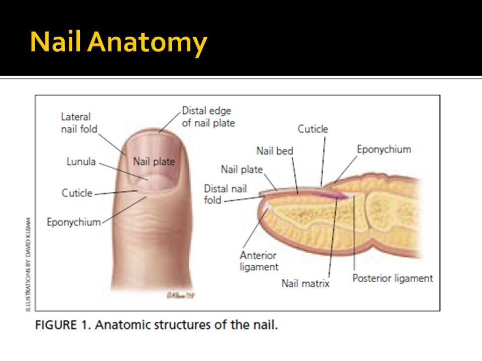  Clinical: Proximal half of nail plate is white & distal half is red brown.