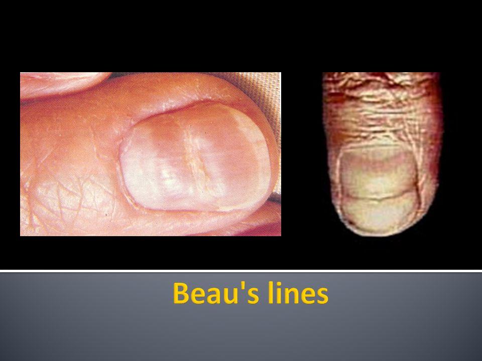  Longitudinal hemorrhagic streaks involving the nail bed.