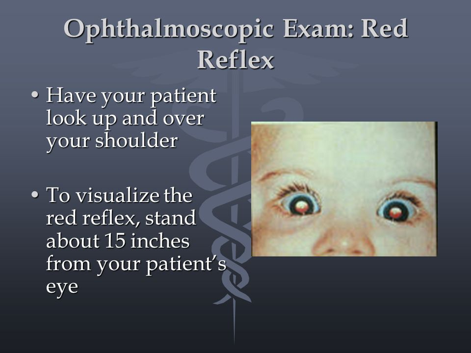 Ophthalmoscopic Exam: Red Reflex Have your patient look up and over your shoulderHave your patient look up and over your shoulder To visualize the red reflex, stand about 15 inches from your patient's eyeTo visualize the red reflex, stand about 15 inches from your patient's eye
