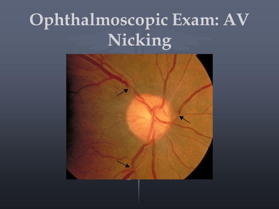 Ophthalmoscopic Exam: AV Nicking