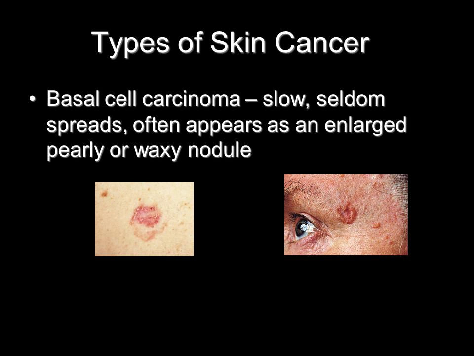 Types of Skin Cancer Basal cell carcinoma – slow, seldom spreads, often appears as an enlarged pearly or waxy noduleBasal cell carcinoma – slow, seldom spreads, often appears as an enlarged pearly or waxy nodule