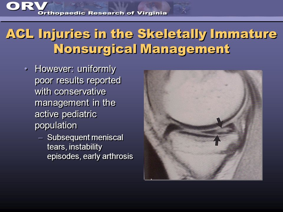 ACL Injuries in the Skeletally Immature Nonsurgical Management However: uniformly poor results reported with conservative management in the active pediatric population –Subsequent meniscal tears, instability episodes, early arthrosis However: uniformly poor results reported with conservative management in the active pediatric population –Subsequent meniscal tears, instability episodes, early arthrosis