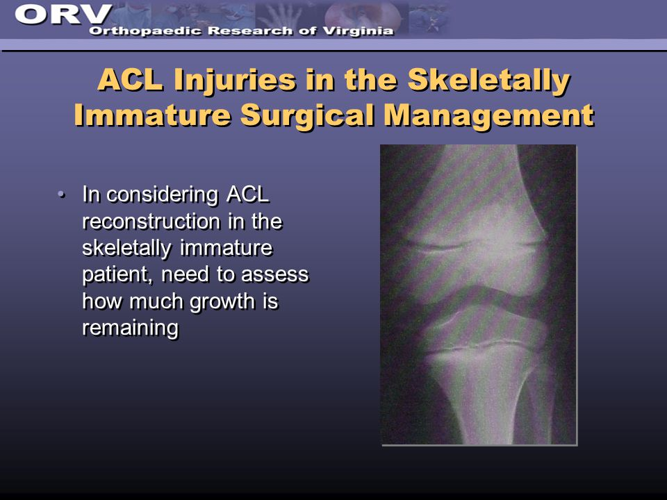 ACL Injuries in the Skeletally Immature Surgical Management In considering ACL reconstruction in the skeletally immature patient, need to assess how much growth is remaining