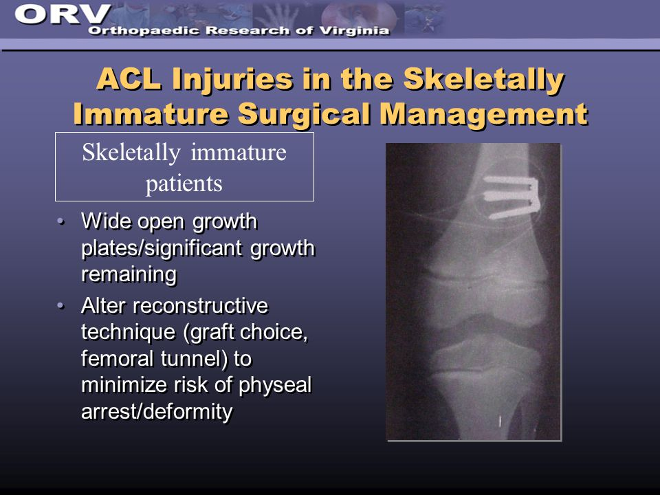 ACL Injuries in the Skeletally Immature Surgical Management Wide open growth plates/significant growth remaining Alter reconstructive technique (graft choice, femoral tunnel) to minimize risk of physeal arrest/deformity Wide open growth plates/significant growth remaining Alter reconstructive technique (graft choice, femoral tunnel) to minimize risk of physeal arrest/deformity Skeletally immature patients