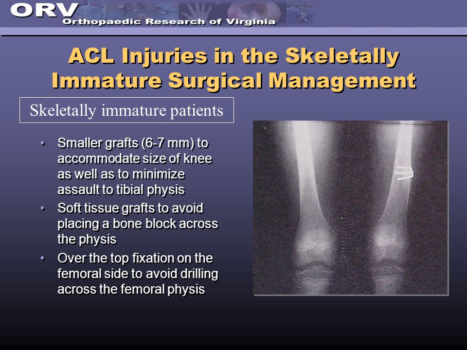 ACL Injuries in the Skeletally Immature Surgical Management Smaller grafts (6-7 mm) to accommodate size of knee as well as to minimize assault to tibial physis Soft tissue grafts to avoid placing a bone block across the physis Over the top fixation on the femoral side to avoid drilling across the femoral physis Smaller grafts (6-7 mm) to accommodate size of knee as well as to minimize assault to tibial physis Soft tissue grafts to avoid placing a bone block across the physis Over the top fixation on the femoral side to avoid drilling across the femoral physis Skeletally immature patients