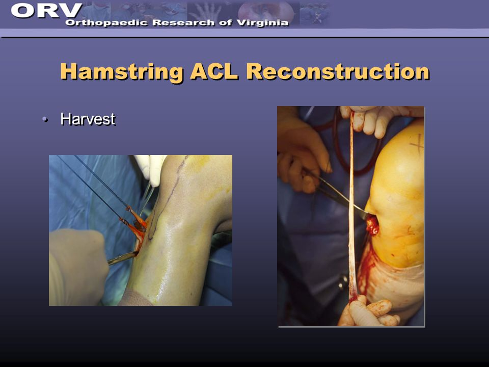 Hamstring ACL Reconstruction Harvest