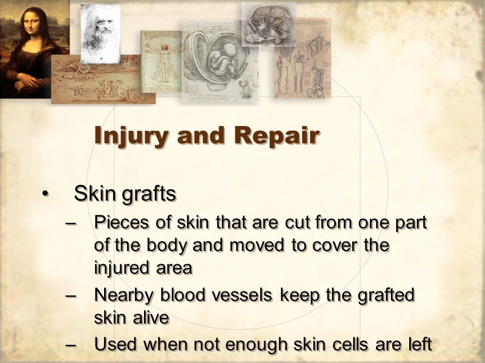 Injury and Repair Skin grafts –Pieces of skin that are cut from one part of the body and moved to cover the injured area –Nearby blood vessels keep the grafted skin alive –Used when not enough skin cells are left Skin grafts –Pieces of skin that are cut from one part of the body and moved to cover the injured area –Nearby blood vessels keep the grafted skin alive –Used when not enough skin cells are left