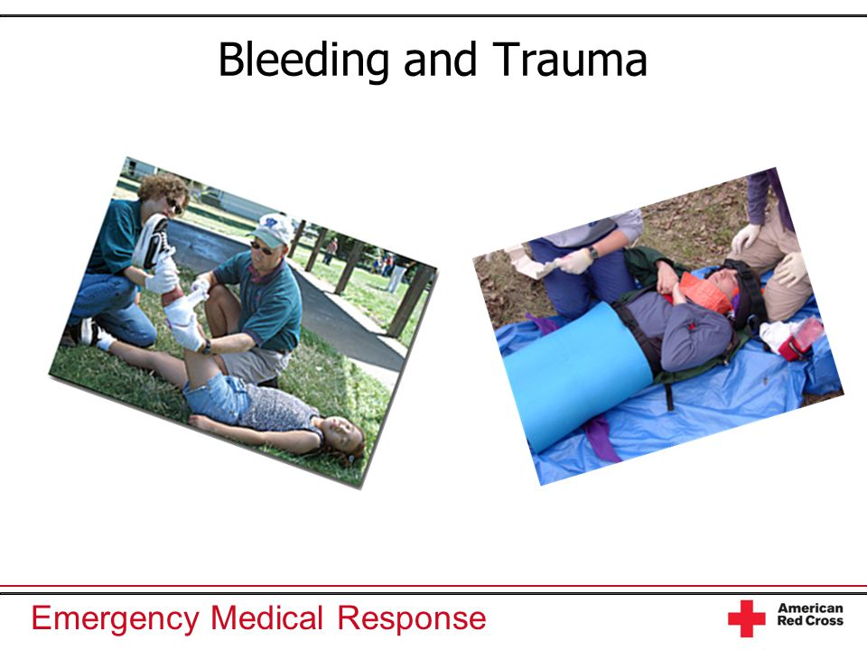 Emergency Medical Response Bleeding and Trauma