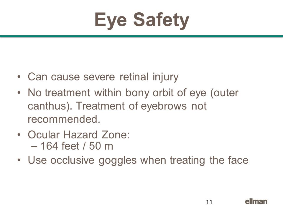 Eye Safety Can cause severe retinal injury No treatment within bony orbit of eye (outer canthus).