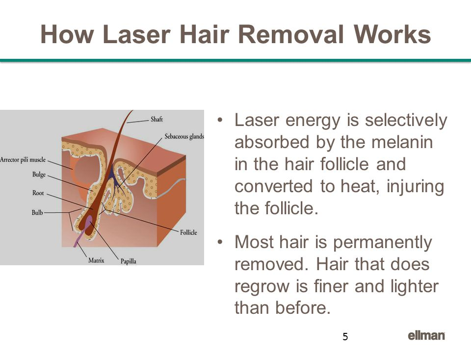 How Laser Hair Removal Works Laser energy is selectively absorbed by the melanin in the hair follicle and converted to heat, injuring the follicle.