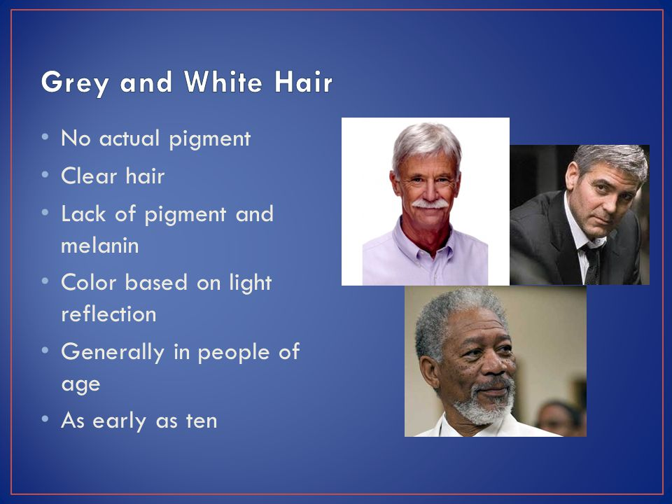 No actual pigment Clear hair Lack of pigment and melanin Color based on light reflection Generally in people of age As early as ten