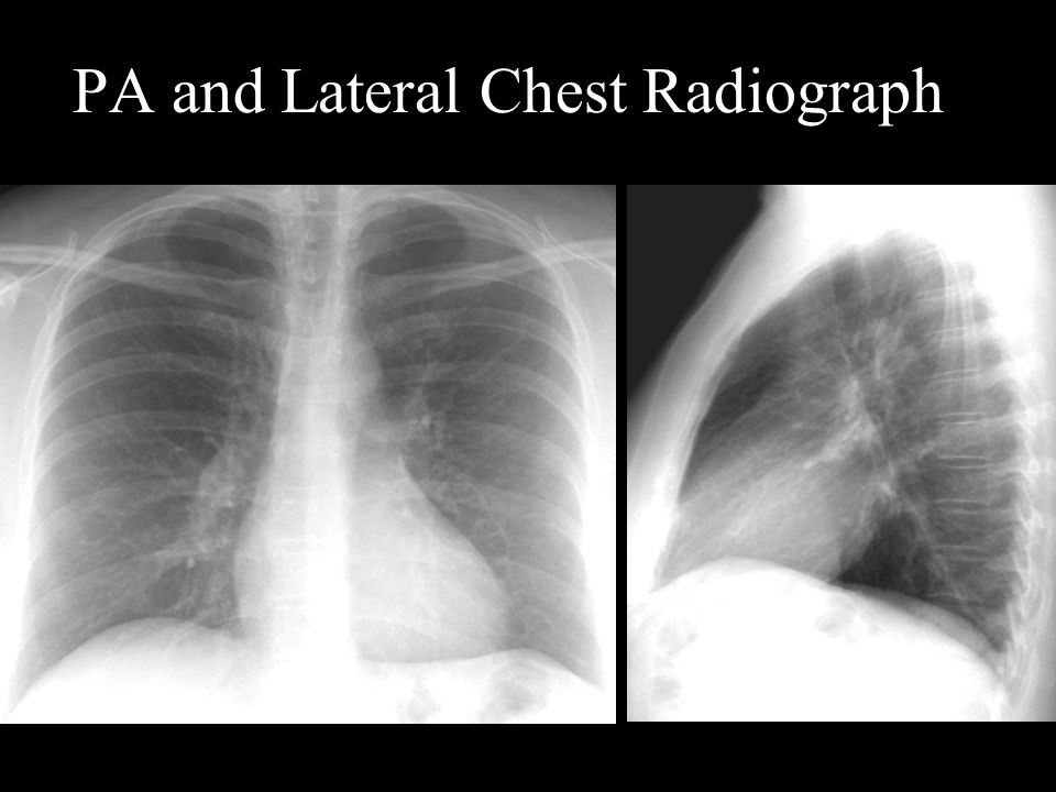 Pulmonic The pulmonary outflow tract is more superior and lateral than many people think.