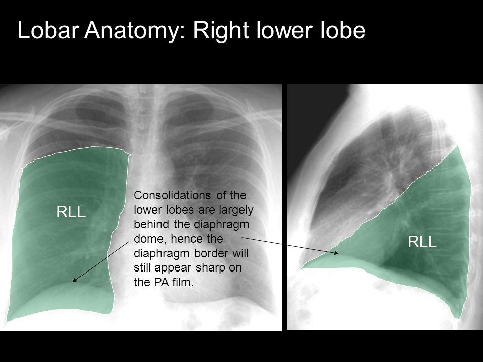 LUL Lobar Anatomy: Left upper lobe LUL borders the left atrium, left ventricle and much of the dome of the diaphragm.