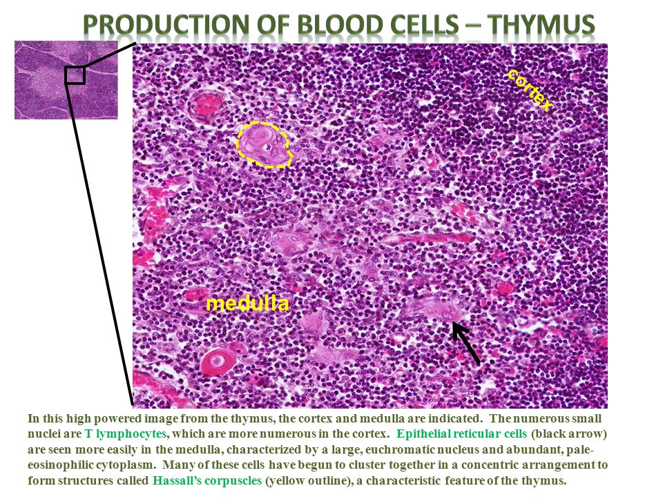 In this high powered image from the thymus, the cortex and medulla are indicated. The numerous small nuclei are T lymphocytes, which are more numerous