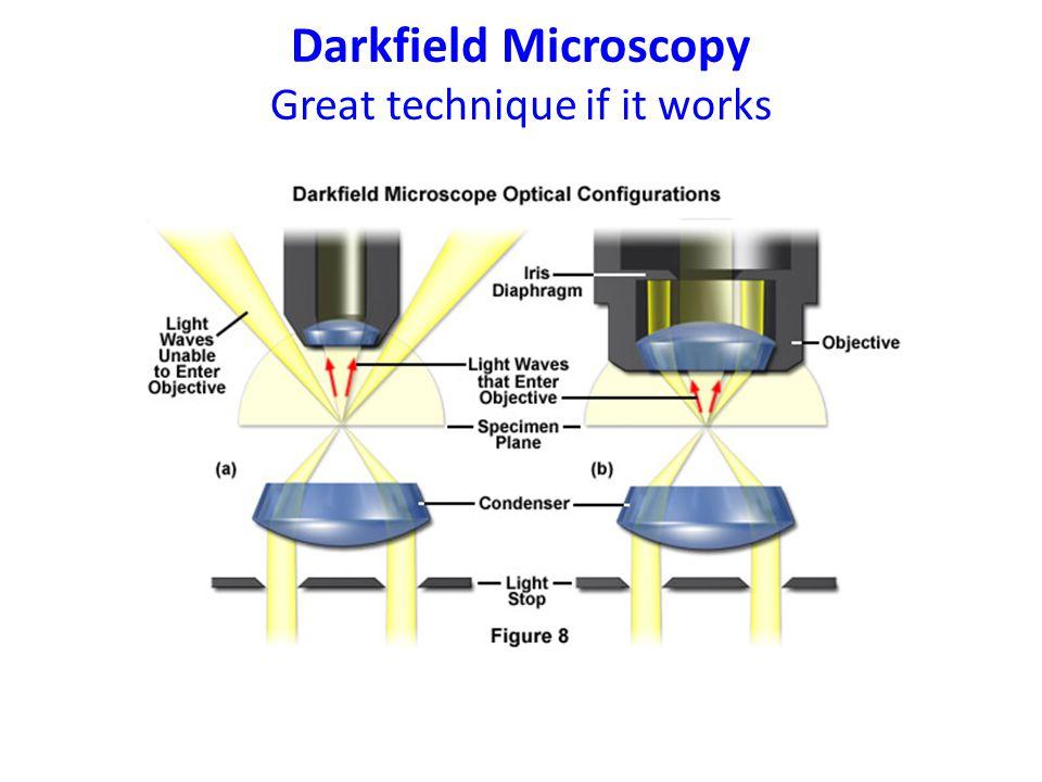 Darkfield Microscopy Great technique if it works