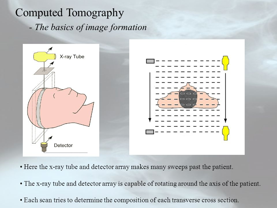 Computed Tomography - The basics of image formation Here the x-ray tube and detector array makes many sweeps past the patient. The x-ray tube and dete