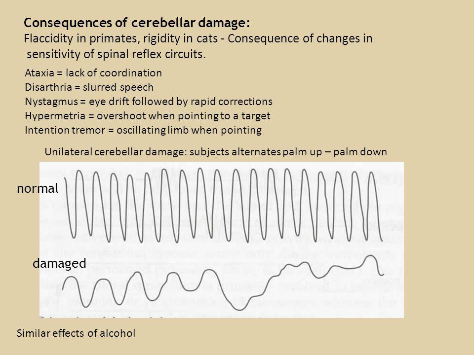 Retinal structure Accomodation:tension on zonule fibres