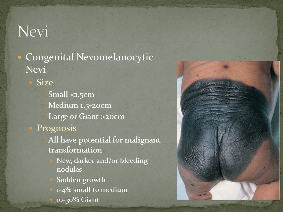 Congenital Nevomelanocytic Nevi Size Small <1.5cm Medium 1.5-20cm Large or Giant >20cm Prognosis All have potential for malignant transformation New, darker and/or bleeding nodules Sudden growth 1-4% small to medium 10-30% Giant
