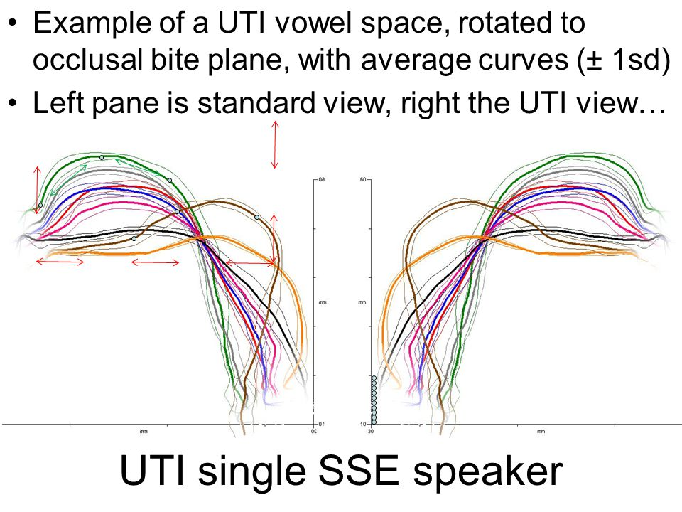 UTI single SSE speaker Example of a UTI vowel space, rotated to occlusal bite plane, with average curves (± 1sd) Left pane is standard view, right the UTI view…