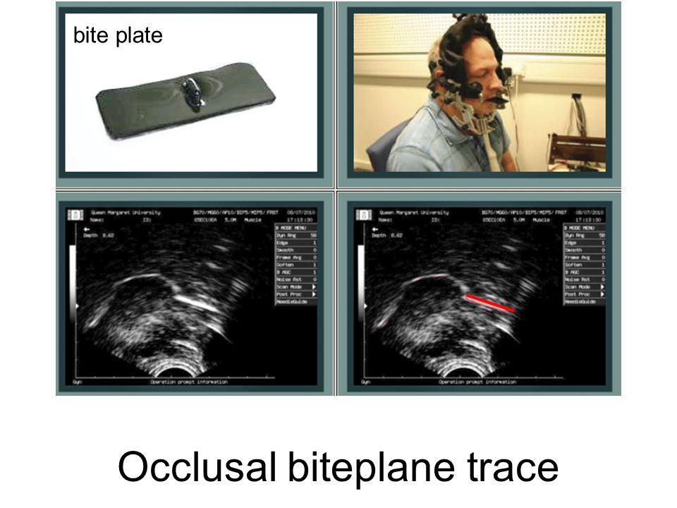 Occlusal biteplane trace bite plate