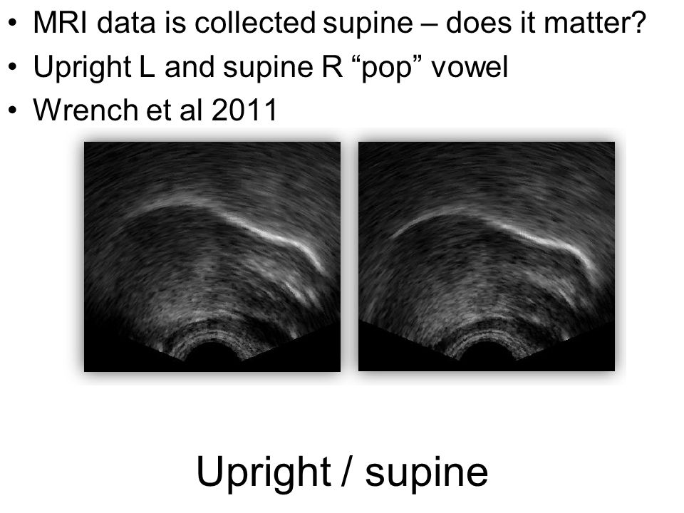 Upright / supine MRI data is collected supine – does it matter.