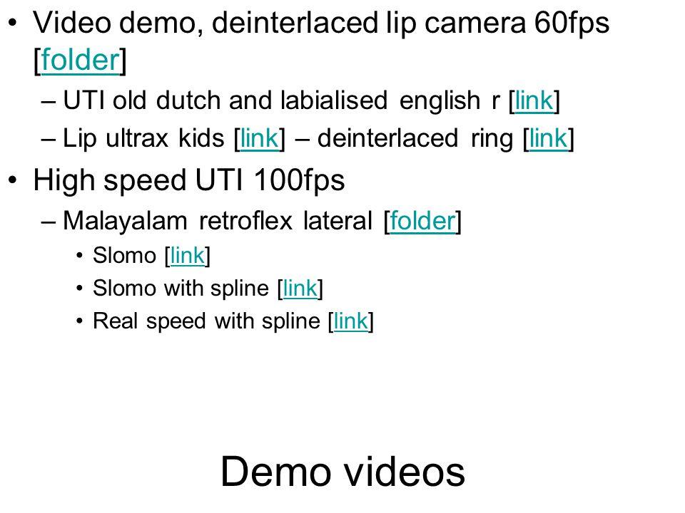 Demo videos Video demo, deinterlaced lip camera 60fps [folder]folder –UTI old dutch and labialised english r [link]link –Lip ultrax kids [link] – deinterlaced ring [link]link High speed UTI 100fps –Malayalam retroflex lateral [folder]folder Slomo [link]link Slomo with spline [link]link Real speed with spline [link]link