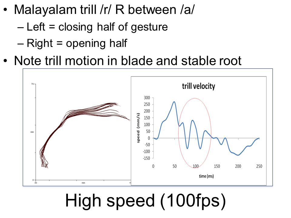 High speed (100fps) Malayalam trill /r/ R between /a/ –Left = closing half of gesture –Right = opening half Note trill motion in blade and stable root