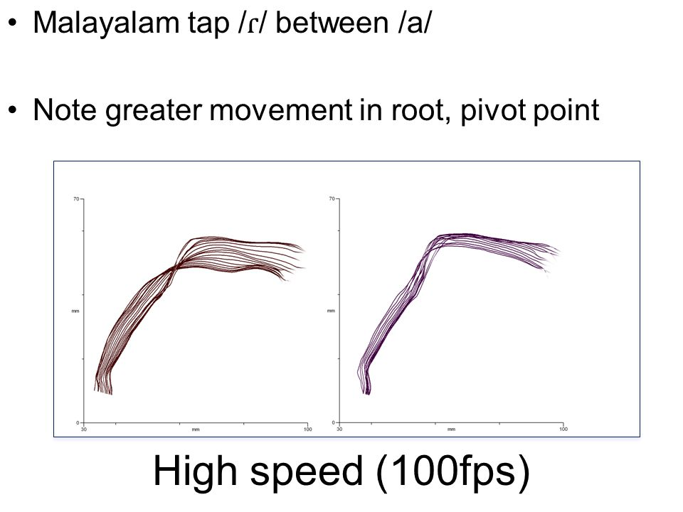 High speed (100fps) Malayalam tap / ɾ / between /a/ Note greater movement in root, pivot point