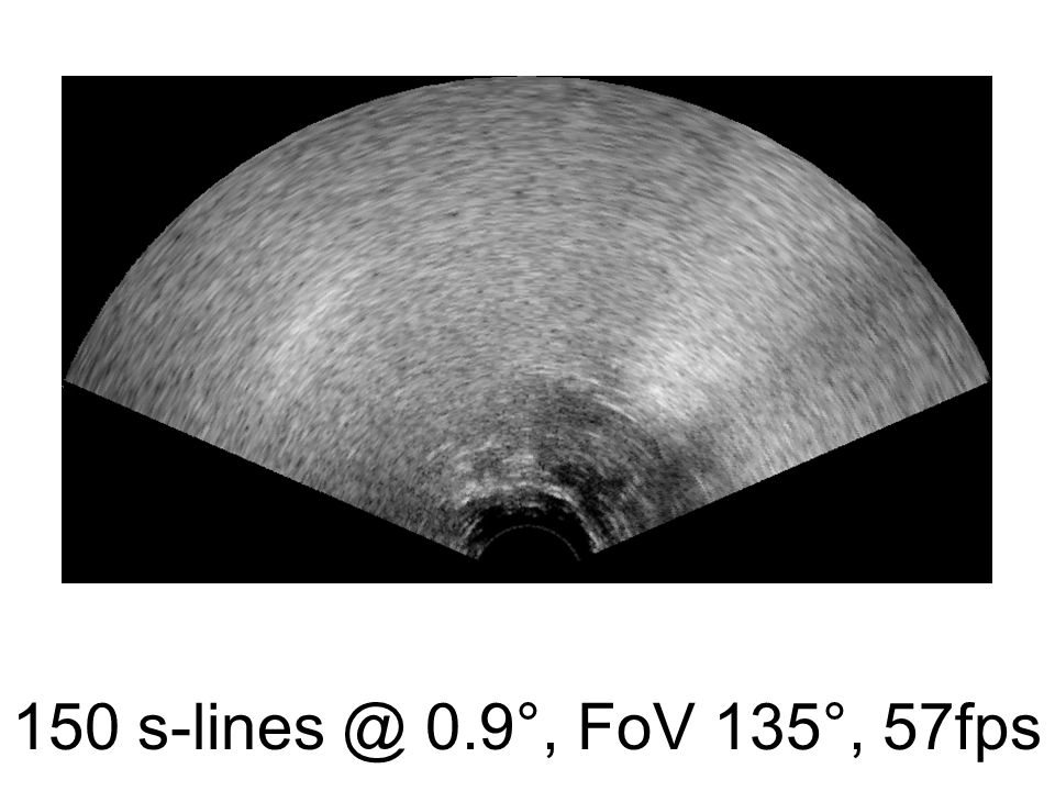 Palates normalised to bite planes Normalised (translation and rotation) to rear of bite plane and relocation of origin (+45mm) Better palate trace alignment, with one rogue