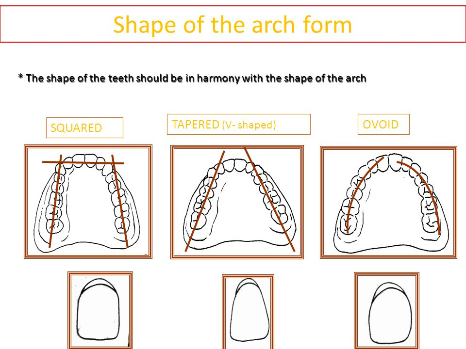 Shape of the arch form * The shape of the teeth should be in harmony with the shape of the arch SQUARED TAPERED (V- shaped) OVOID