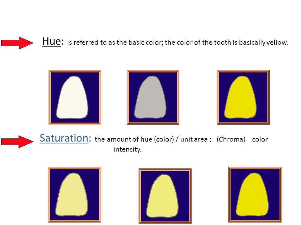 Hue: Is referred to as the basic color ; the color of the tooth is basically yellow.