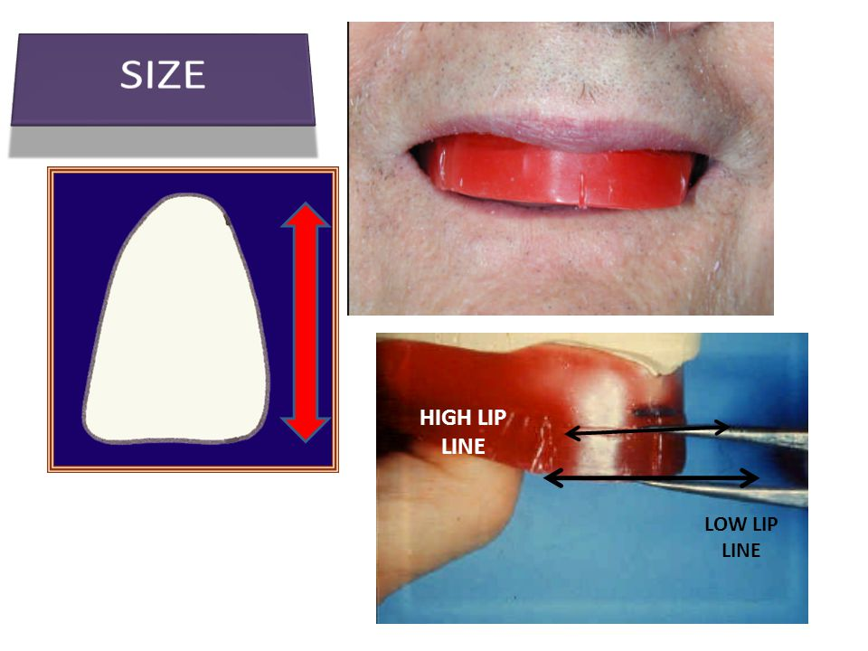Tooth material Artificial teeth may be made of: Artificial teeth may be made of: 1.