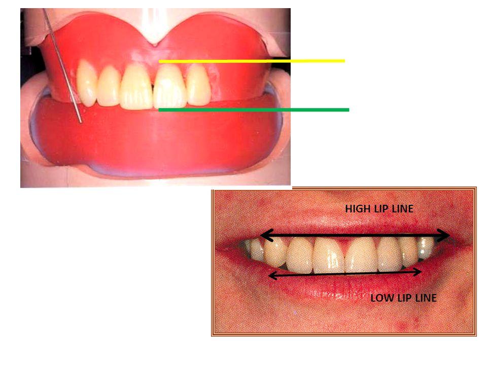 Acrylic resin teeth Properties of acrylic resin teeth: 1.Low sp.