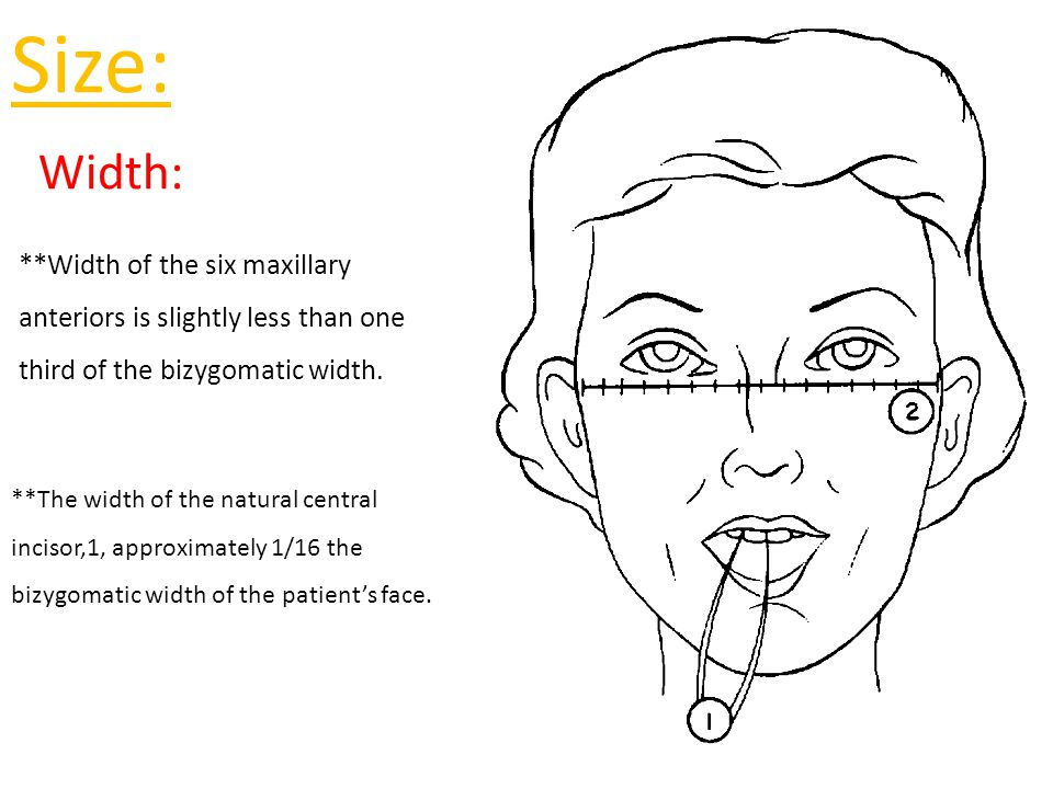 **A vertical line extending along the lateral surface of the ala often will pass through the middle of the natural upper canine.