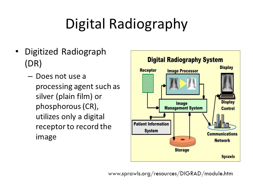Digital Radiography Digitized Radiograph (DR) – Does not use a processing agent such as silver (plain film) or phosphorous (CR), utilizes only a digital receptor to record the image www.sprawls.org/resources/DIGRAD/module.htm