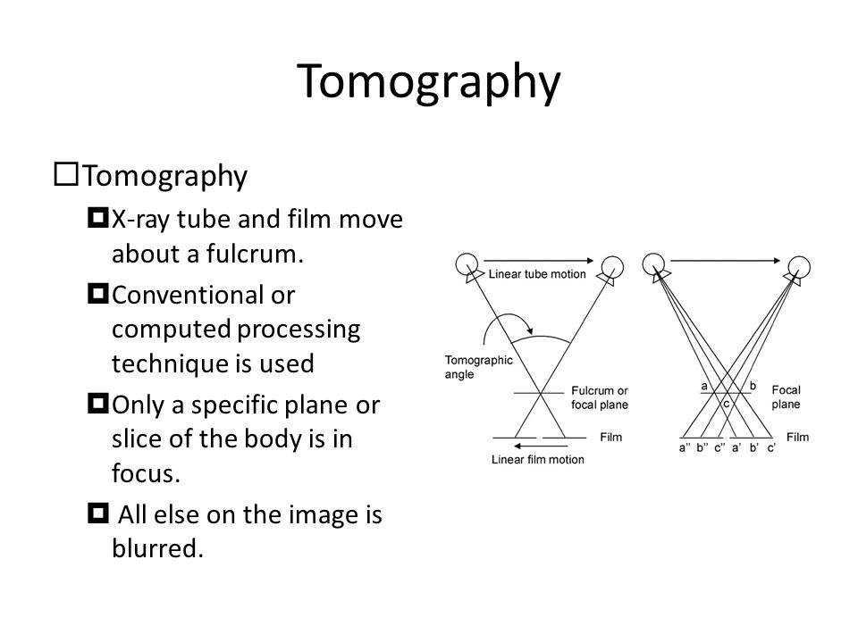 Tomography  Tomography  X-ray tube and film move about a fulcrum.