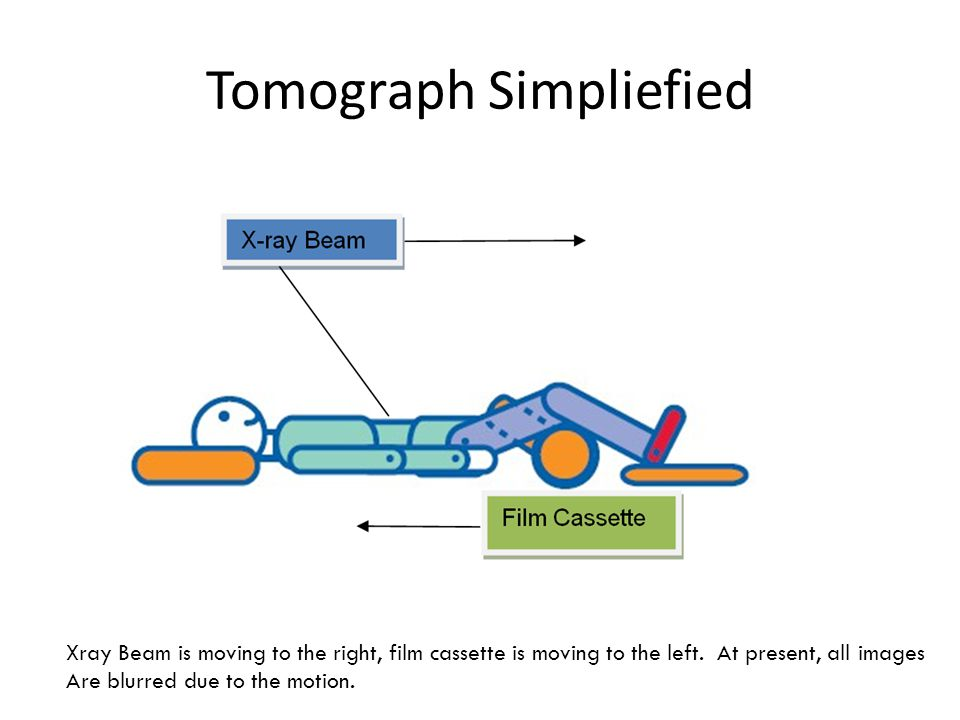 Tomograph Simpliefied X – Ray Beam Film Cassette Xray Beam is moving to the right, film cassette is moving to the left.